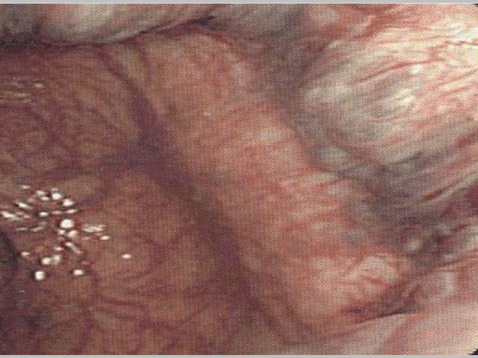 Diagnostika Klidové – rektoskopie – často náhodněKlidové – rektoskopie – často náhodně I.stupeň - rektoskopie /anoskopie/I.stupeň - rektoskopie /anoskopie/ II.stupeň – rektoskopie + Valsalv.