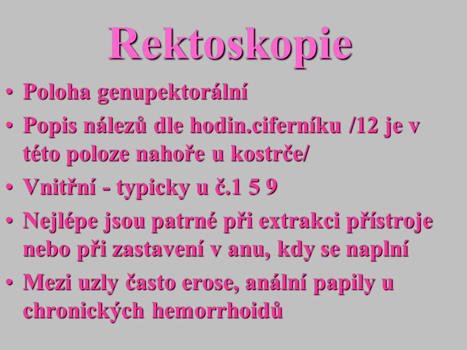 Rektoskopie Poloha genupektorálníPoloha genupektorální Popis nálezů dle hodin.ciferníku /12 je v této poloze nahoře u kostrče/Popis nálezů dle hodin.c