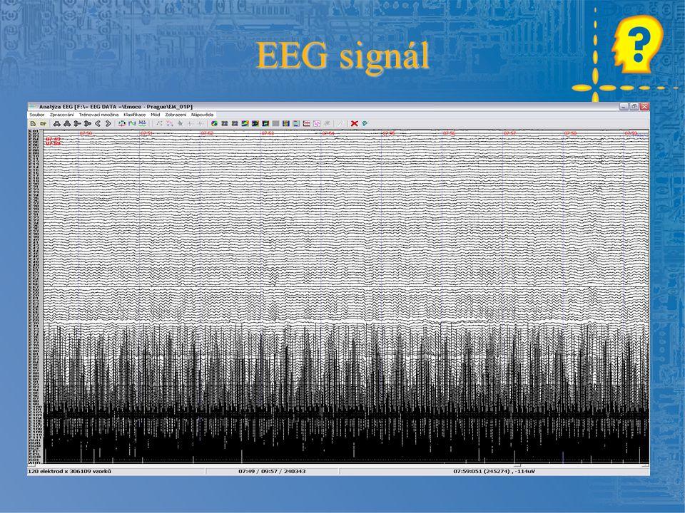 EEG signál