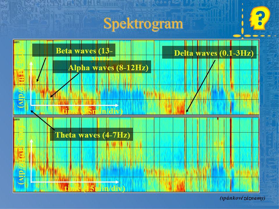 time (15min/div) freq. (10Hz/div) Beta waves (13- 30Hz) Delta waves (0.1-3Hz) Alpha waves (8-12Hz) Theta waves (4-7Hz) time (15min/div) freq. (