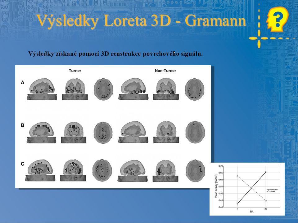 . Výsledky Loreta 3D - Gramann Výsledky získané pomocí 3D renstrukce povrchového signálu.