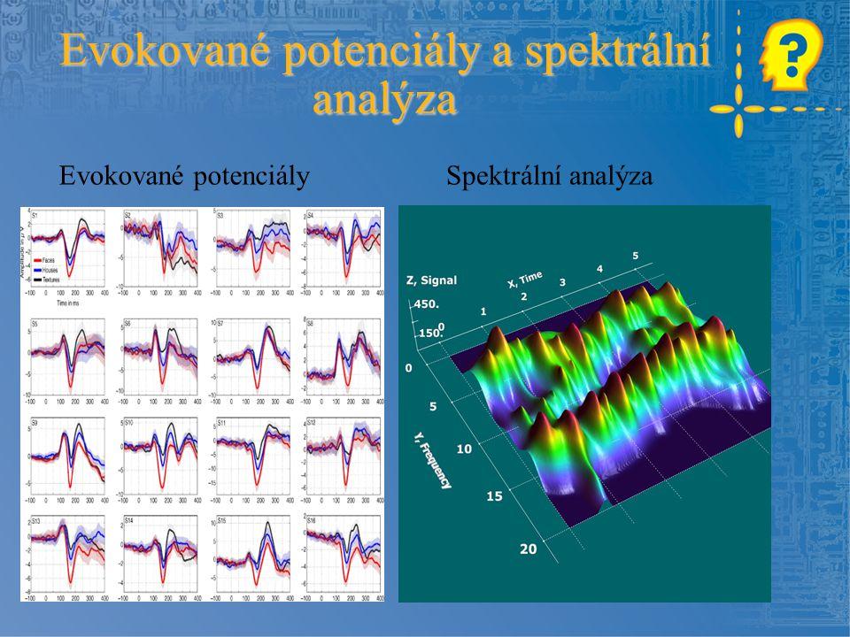 Evokované potenciály a spektrální analýza Spektrální analýzaEvokované potenciály