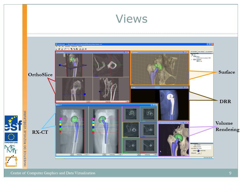 """""""obstacle-set  """"action line = křivka spojující středy """"origin a """"insertion oblastí svalu, jejíž části leží na ploše pevně definovaných geometrických překážek  překážky  koule, válec, kužel typicky nejvýše dvě překážky  reprezentují kosti, klouby, okolní tkáň  přesnější, ale implementačně i výpočetně náročnější Existující řešení Centre of Computer Graphics and Data Vizualisation 40"""