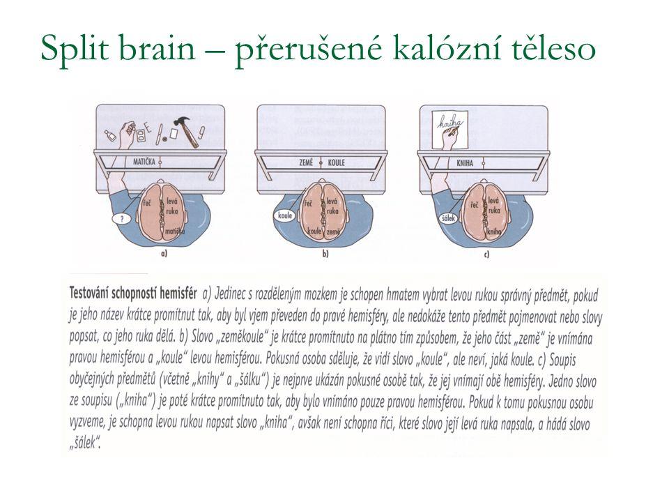 Split brain – přerušené kalózní těleso