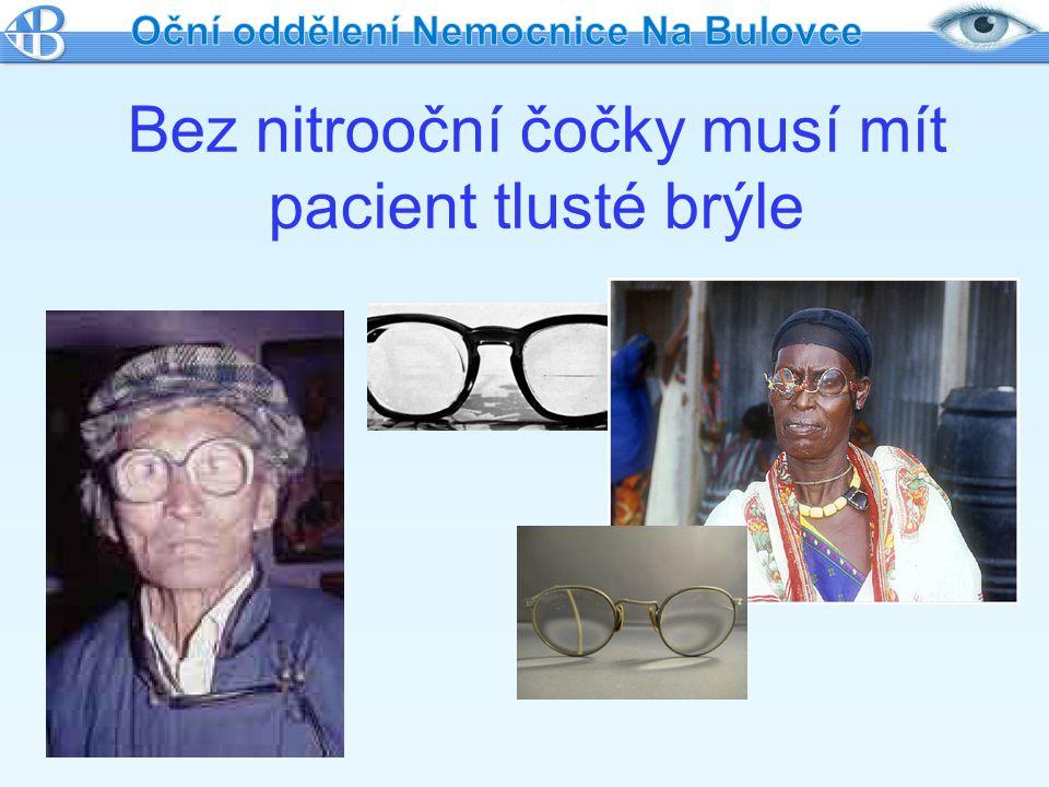 Bez nitrooční čočky musí mít pacient tlusté brýle
