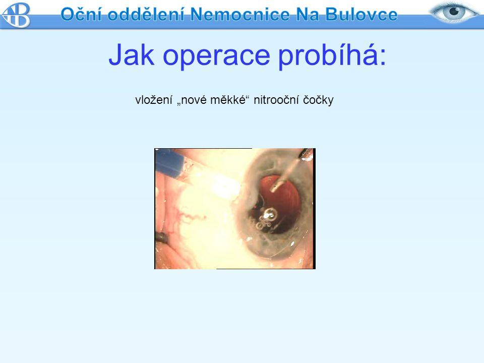 """Jak operace probíhá: vložení """"nové měkké"""" nitrooční čočky"""