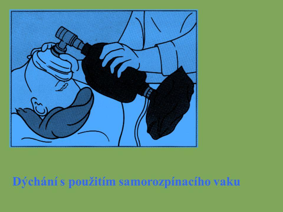 Dýchání s použitím samorozpínacího vaku