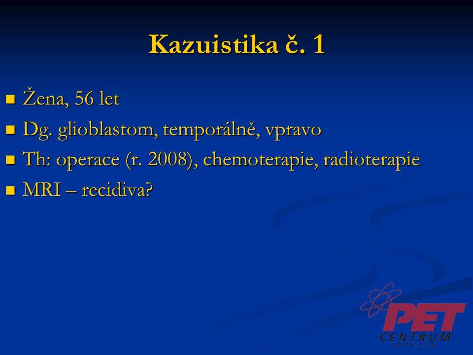 Kazuistika č. 1 Žena, 56 let Žena, 56 let Dg. glioblastom, temporálně, vpravo Dg. glioblastom, temporálně, vpravo Th: operace (r. 2008), chemoterapie,