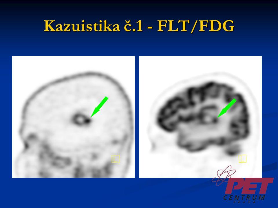 Kazuistika č.1 - FDG / FLT