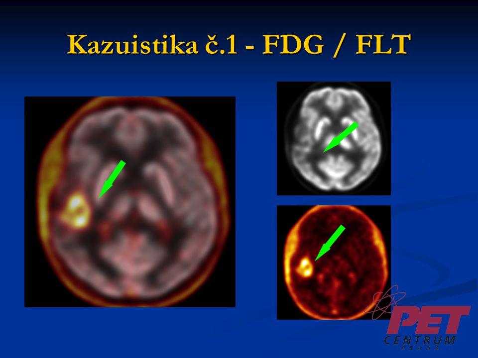 Kazuistika č.2  Muž, 54 let  Dg. oligoastrocytom, precentrálně vlevo  Th: parciální resekce (r.