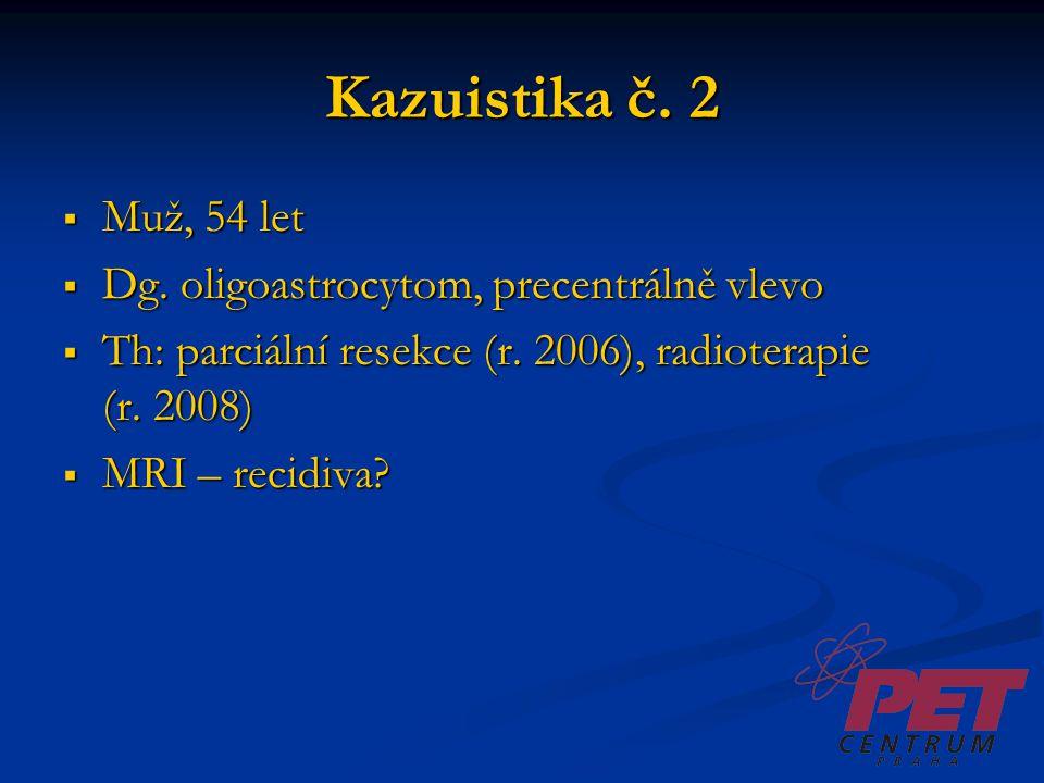 Kazuistika č. 2  Muž, 54 let  Dg. oligoastrocytom, precentrálně vlevo  Th: parciální resekce (r. 2006), radioterapie (r. 2008)  MRI – recidiva?