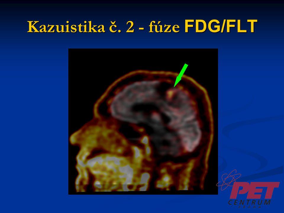 Kazuistika č.3 Muž, 53 let Dg. ca ledviny Th: radioterapie drobných metastáz mozku MRI – recidiva?