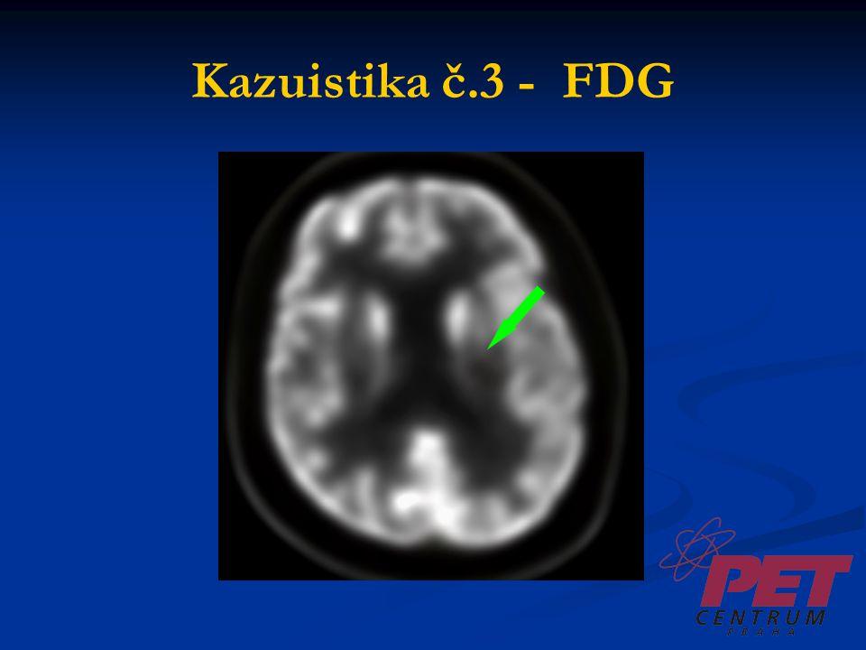 Kazuistika č.3 - FDG