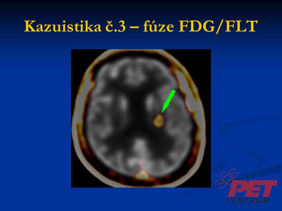 Závěr FDG vysoká akumulace v šedé hmotě FDG vysoká akumulace v šedé hmotě FLT minimální akumulace v šedé hmotě FLT minimální akumulace v šedé hmotě => FLT není vhodné pro zobrazení demencí a epileptických fokusů => FLT není vhodné pro zobrazení demencí a epileptických fokusů => FLT se jeví podstatně vhodnější pro zobrazení tumorů mozku (vysoký kontrast) => FLT se jeví podstatně vhodnější pro zobrazení tumorů mozku (vysoký kontrast) Je třeba získat další zkušenosti.