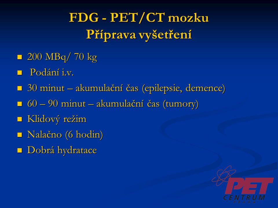 FDG - PET/CT mozku Příprava vyšetření 200 MBq/ 70 kg 200 MBq/ 70 kg Podání i.v. Podání i.v. 30 minut – akumulační čas (epilepsie, demence) 30 minut –