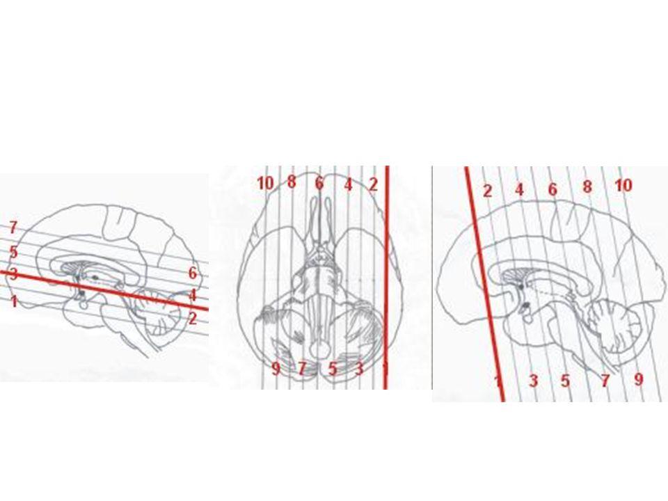 Základní struktury corpus callosum capsula interna, externa extrema komory jednotlivá bazální ganglia thalamus tr.