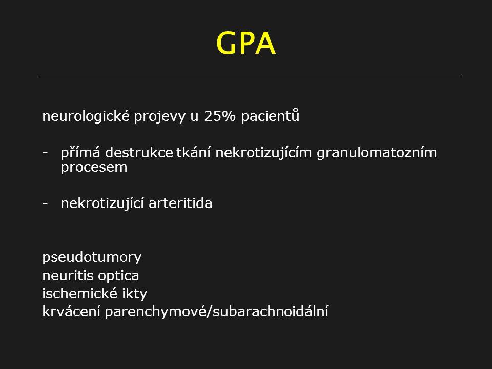 GPA neurologické projevy u 25% pacientů -přímá destrukce tkání nekrotizujícím granulomatozním procesem -nekrotizující arteritida pseudotumory neuritis optica ischemické ikty krvácení parenchymové/subarachnoidální