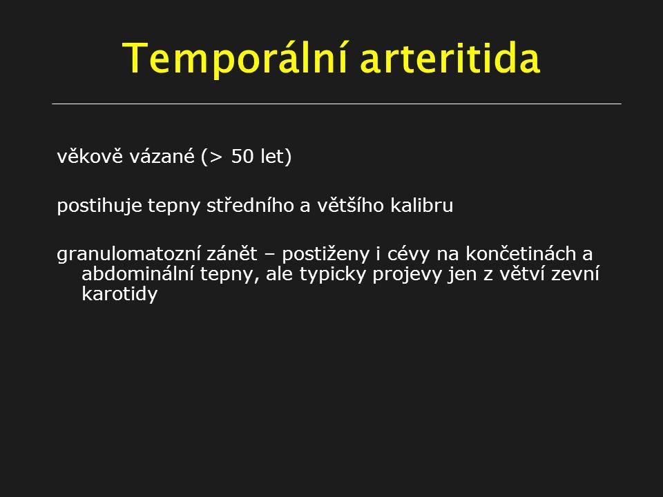 Temporální arteritida věkově vázané (> 50 let) postihuje tepny středního a většího kalibru granulomatozní zánět – postiženy i cévy na končetinách a abdominální tepny, ale typicky projevy jen z větví zevní karotidy