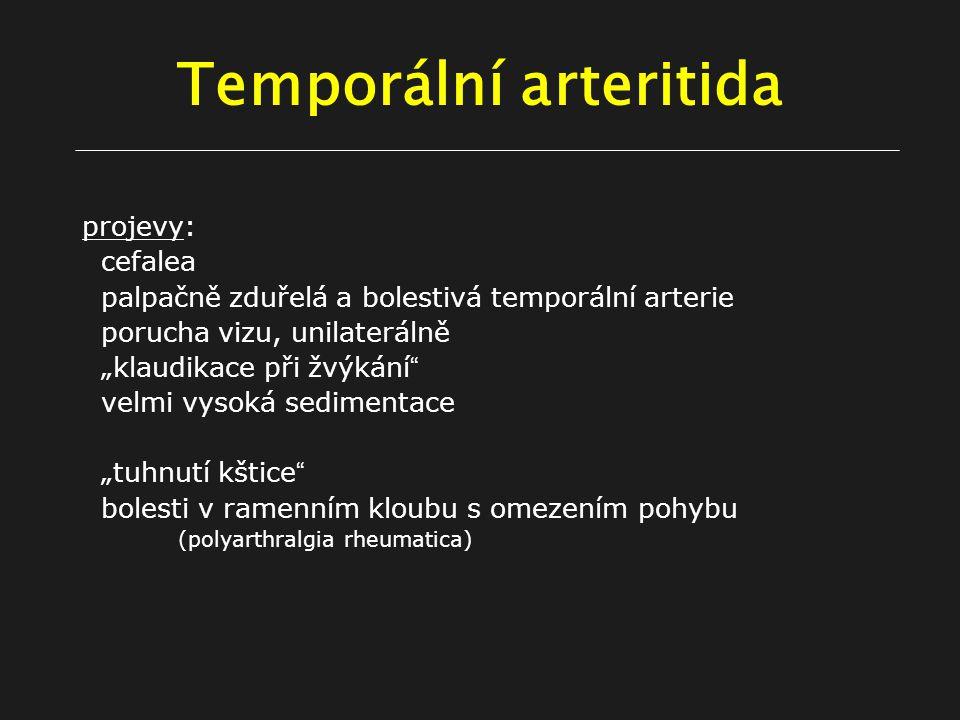 """Temporální arteritida projevy: cefalea palpačně zduřelá a bolestivá temporální arterie porucha vizu, unilaterálně """"klaudikace při žvýkání velmi vysoká sedimentace """"tuhnutí kštice bolesti v ramenním kloubu s omezením pohybu (polyarthralgia rheumatica)"""