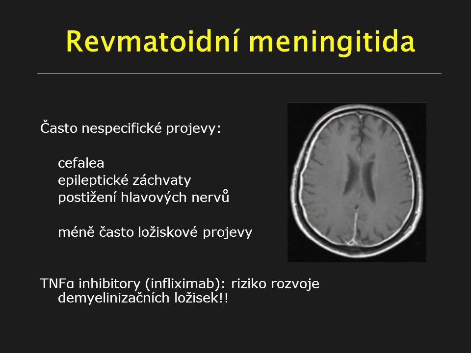 Revmatoidní meningitida Často nespecifické projevy: cefalea epileptické záchvaty postižení hlavových nervů méně často ložiskové projevy TNFα inhibitory (infliximab): riziko rozvoje demyelinizačních ložisek!!