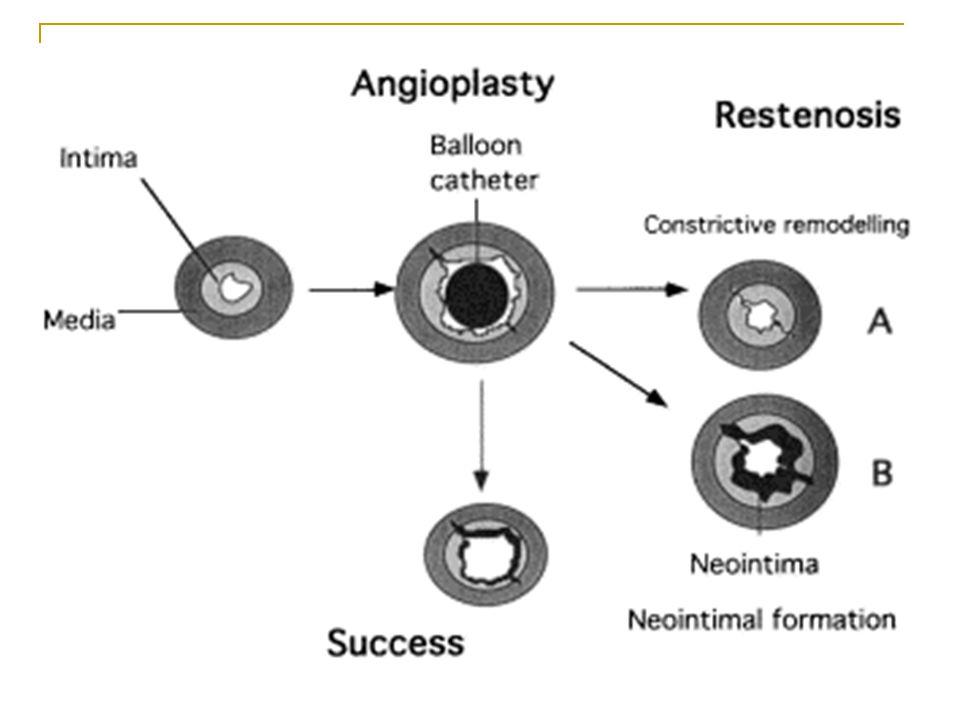 Mechanismy působení stentu Rozšíření lumen cévy je dáno kombinací redukce plaku (komprese/embolizace), osové redistribuce plaku v lézi (směrem proximálním i distálním od stentu či angioplastiky), vypuzení plaku a rozšíření cévy.