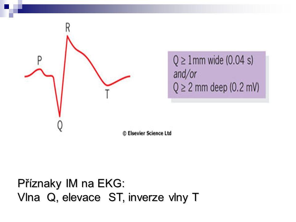 Příznaky IM na EKG: Vlna Q, elevace ST, inverze vlny T