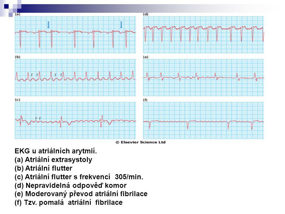 EKG u atriálních arytmií. (a) Atriální extrasystoly (b) Atriální flutter (c) Atriální flutter s frekvencí 305/min. (d) Nepravidelná odpověď komor (e)