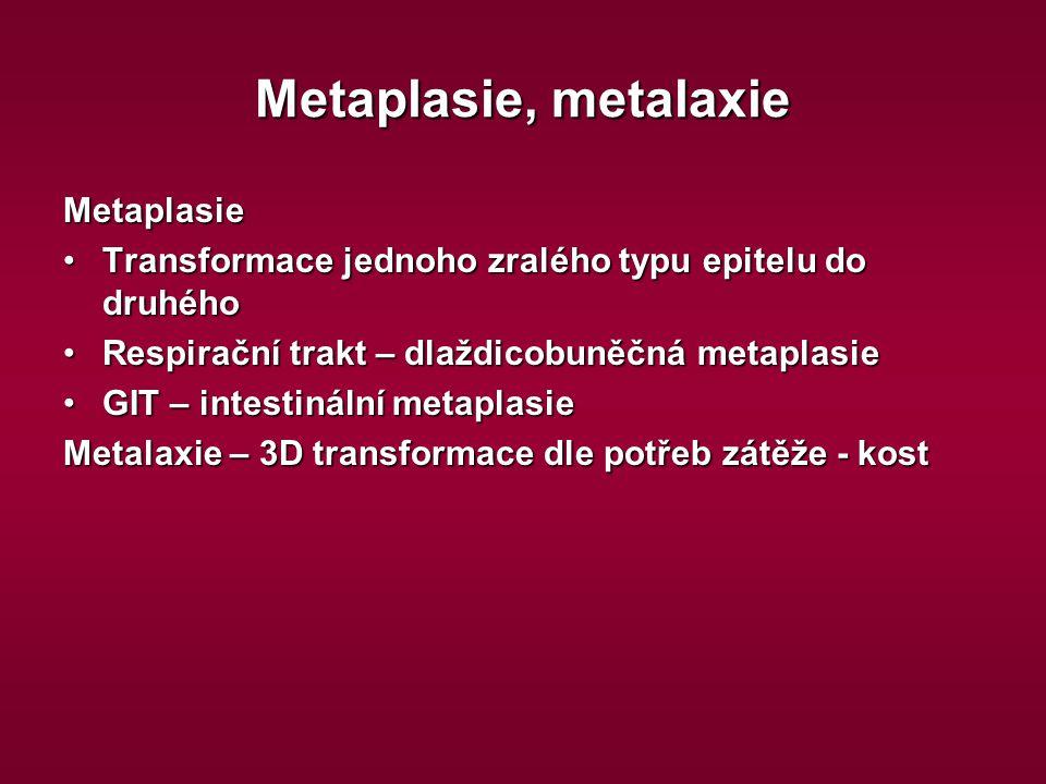 Metaplasie, metalaxie Metaplasie Transformace jednoho zralého typu epitelu do druhéhoTransformace jednoho zralého typu epitelu do druhého Respirační t