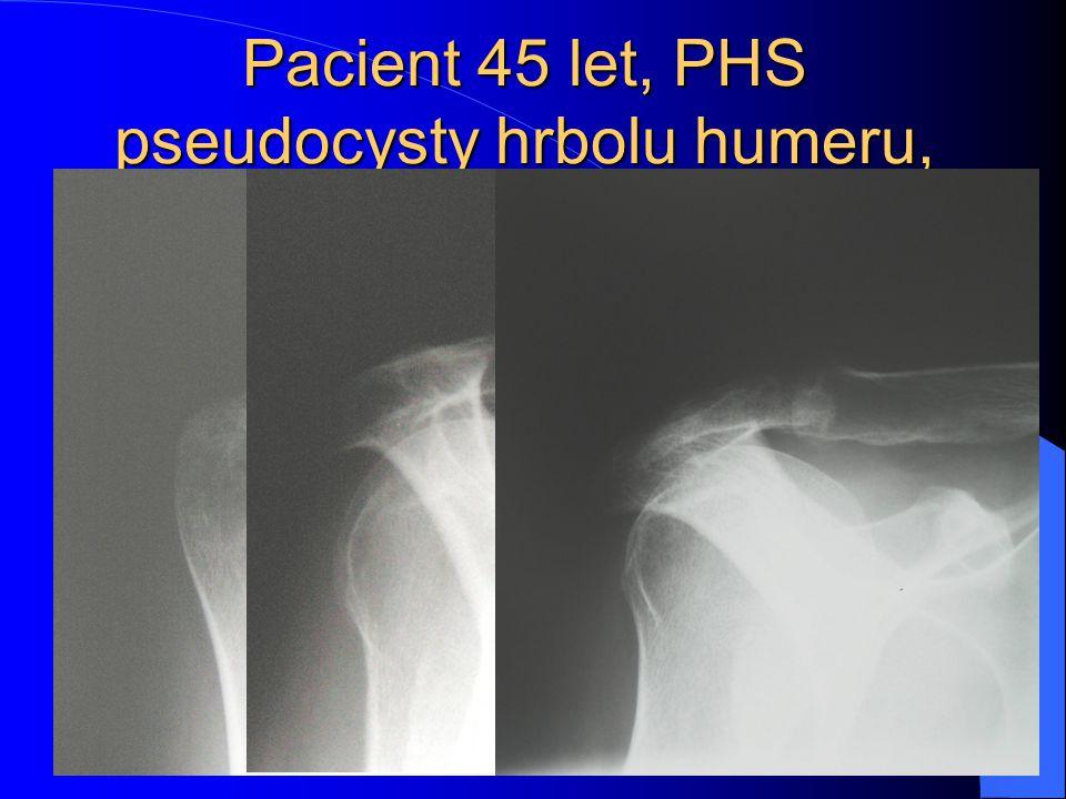 Pacient 45 let, PHS pseudocysty hrbolu humeru, artrotické změny AC kloubu, subakrom. prost., kalcifikace do 2 mm