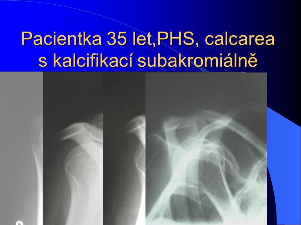 Pacientka 35 let,PHS, calcarea s kalcifikací subakromiálně velikosti 7x4 mm