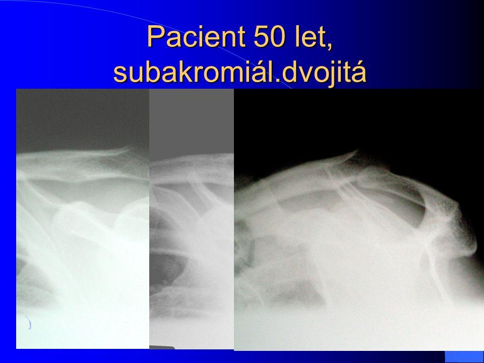 Pacient 50 let, subakromiál.dvojitá paraartikulární kalcifikace 10x8 mm