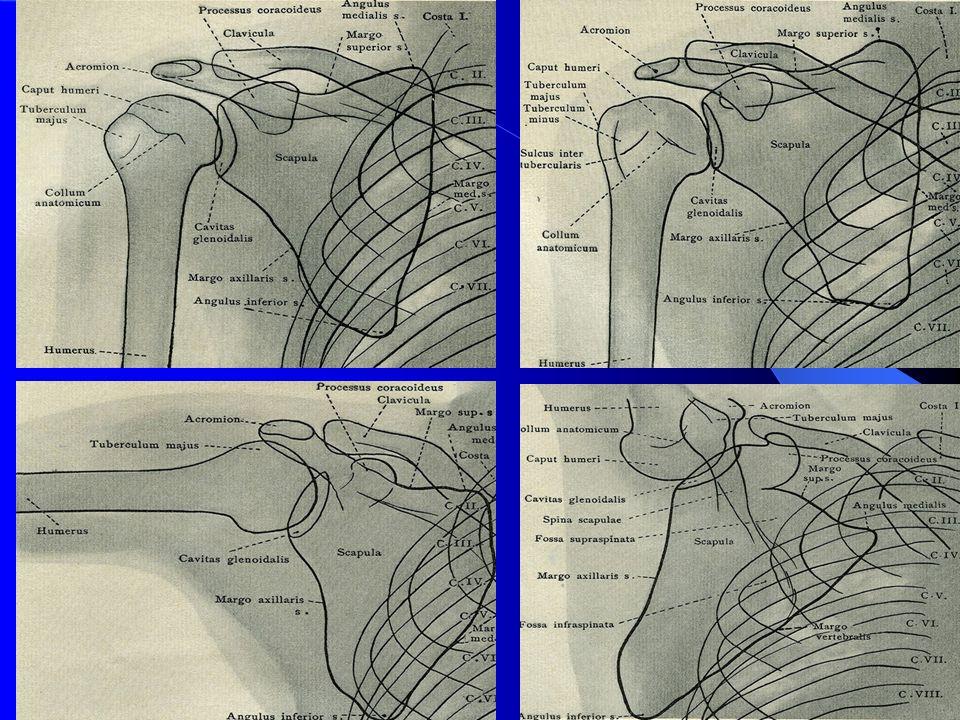 Pacientka 35 let PHS partim.calcarea paraartikulárně, vícečetné ohraničené okrouhlé kalcifikace velikosti 5 mm a subakromiálně kontrastní stíny 10x5 mm