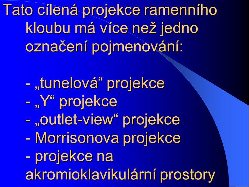 """Tato cílená projekce ramenního kloubu má více než jedno označení pojmenování: - """"tunelová"""" projekce - """"Y"""" projekce - """"outlet-view"""" projekce - Morrison"""