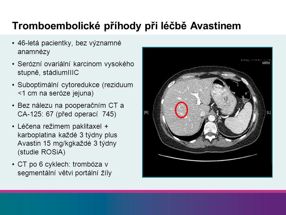 Tromboembolické příhody při léčbě Avastinem 46-letá pacientky, bez významné anamnézy Serózní ovariální karcinom vysokého stupně, stádiumIIIC Suboptimální cytoredukce (reziduum <1 cm na seróze jejuna) Bez nálezu na pooperačním CT a CA-125: 67 (před operací 745) Léčena režimem paklitaxel + karboplatina každé 3 týdny plus Avastin 15 mg/kgkaždé 3 týdny (studie ROSiA) CT po 6 cyklech: trombóza v segmentální větvi portální žíly
