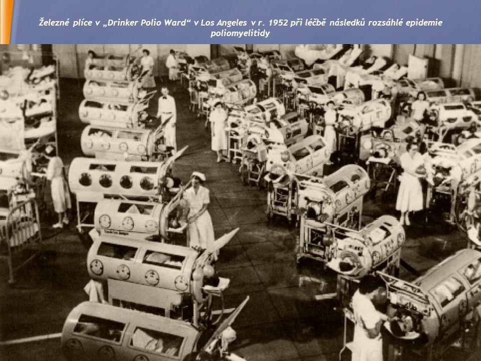 """15 Železné plíce v """"Drinker Polio Ward v Los Angeles v r."""