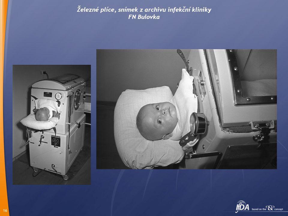 16 Železné plíce, snímek z archivu infekční kliniky FN Bulovka