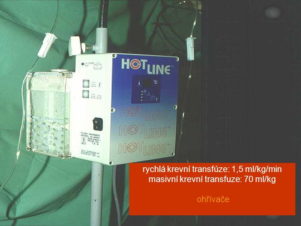 6.sympozium CSBM Jihlava 2010 rychlá krevní transfúze: 1,5 ml/kg/min masivní krevní transfuze: 70 ml/kg ohřívače