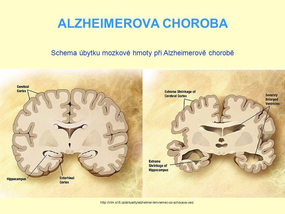 ALZHEIMEROVA CHOROBA http://vtm.e15.cz/aktuality/alzheimer-ten-nemec-co-schovava-veci Schema úbytku mozkové hmoty při Alzheimerově chorobě