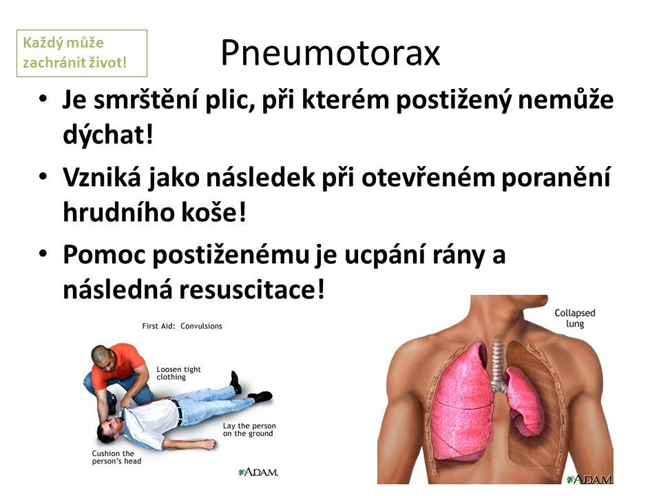 Pneumotorax Je smrštění plic, při kterém postižený nemůže dýchat! Vzniká jako následek při otevřeném poranění hrudního koše! Pomoc postiženému je ucpá