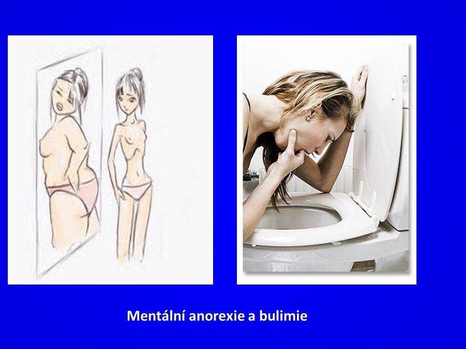 Mentální anorexie a bulimie