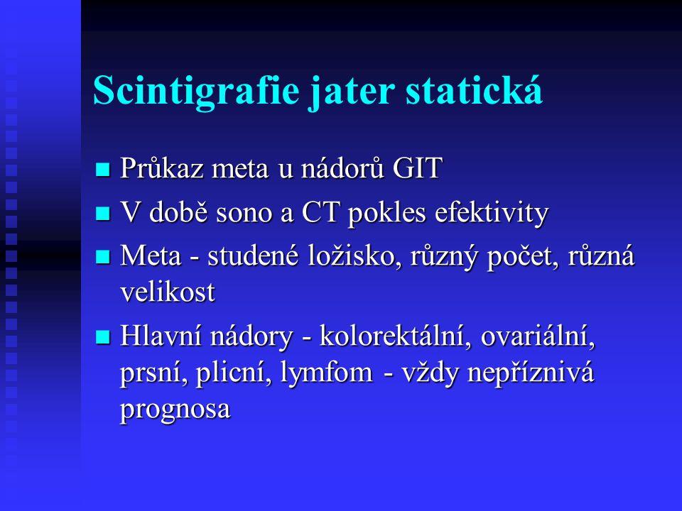 Scintigrafie jater statická Průkaz meta u nádorů GIT Průkaz meta u nádorů GIT V době sono a CT pokles efektivity V době sono a CT pokles efektivity Me