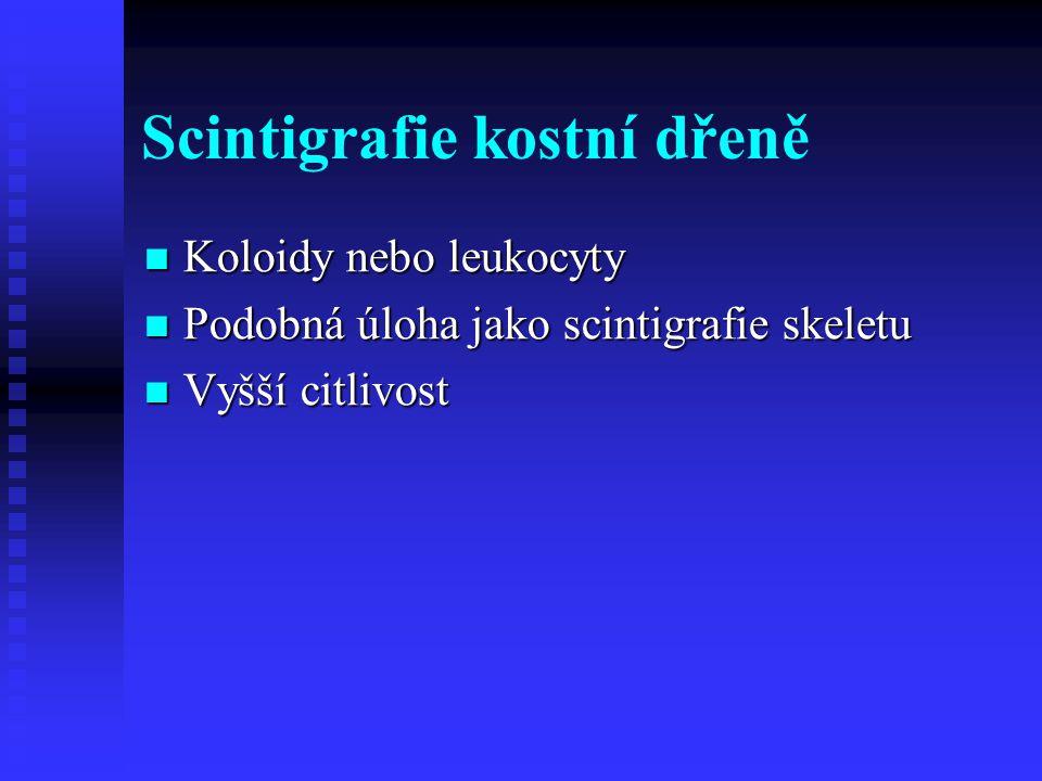 Scintigrafie kostní dřeně Koloidy nebo leukocyty Koloidy nebo leukocyty Podobná úloha jako scintigrafie skeletu Podobná úloha jako scintigrafie skelet