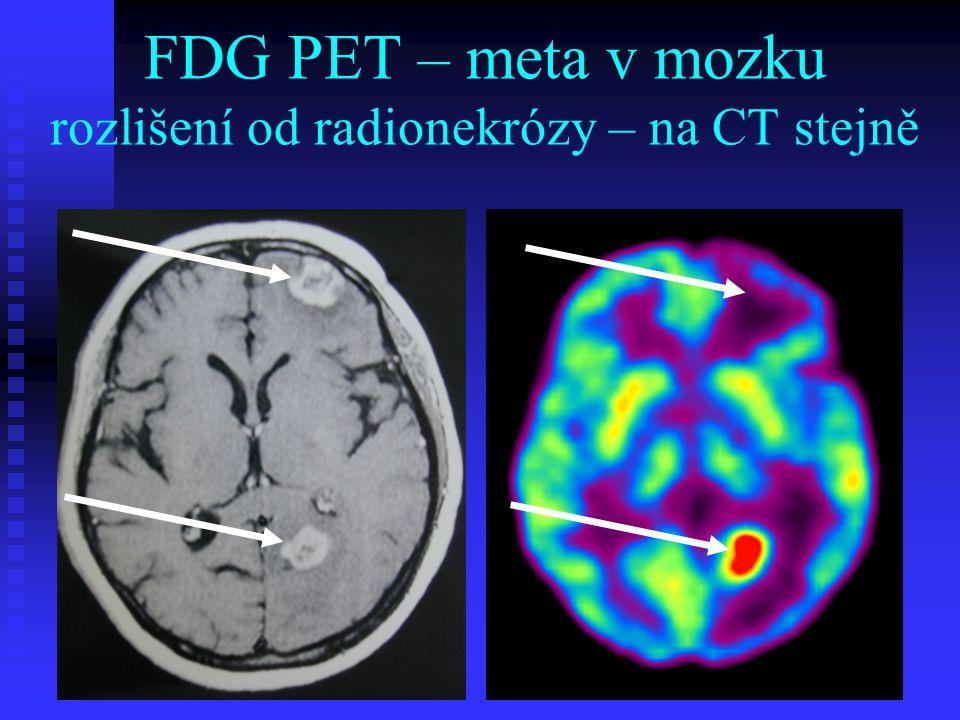 FDG PET – meta v mozku rozlišení od radionekrózy – na CT stejně