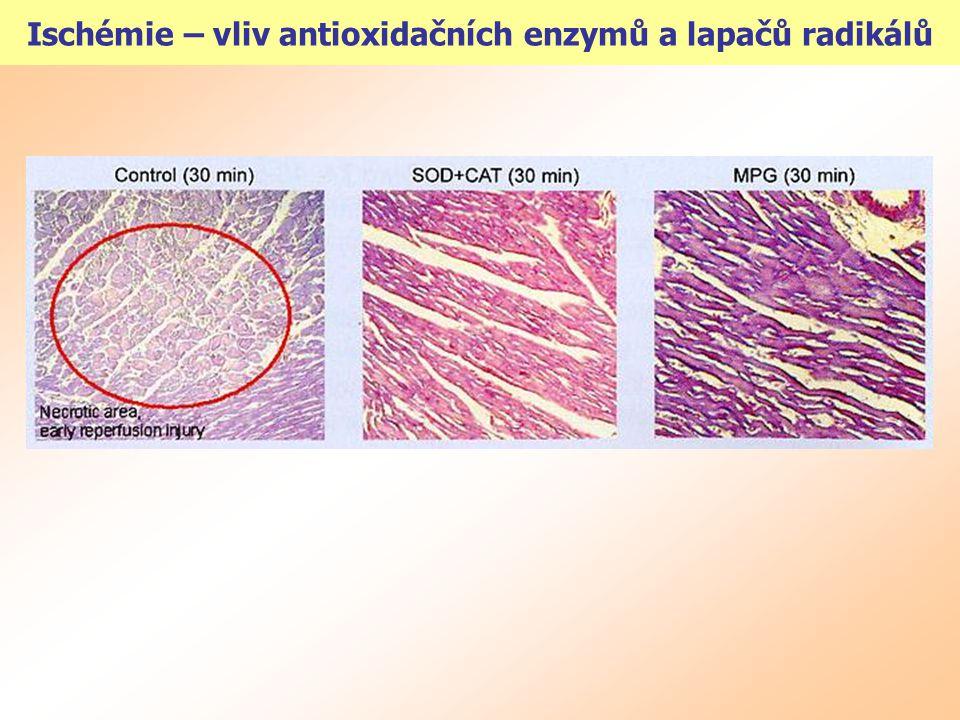 Ischémie – vliv antioxidačních enzymů a lapačů radikálů