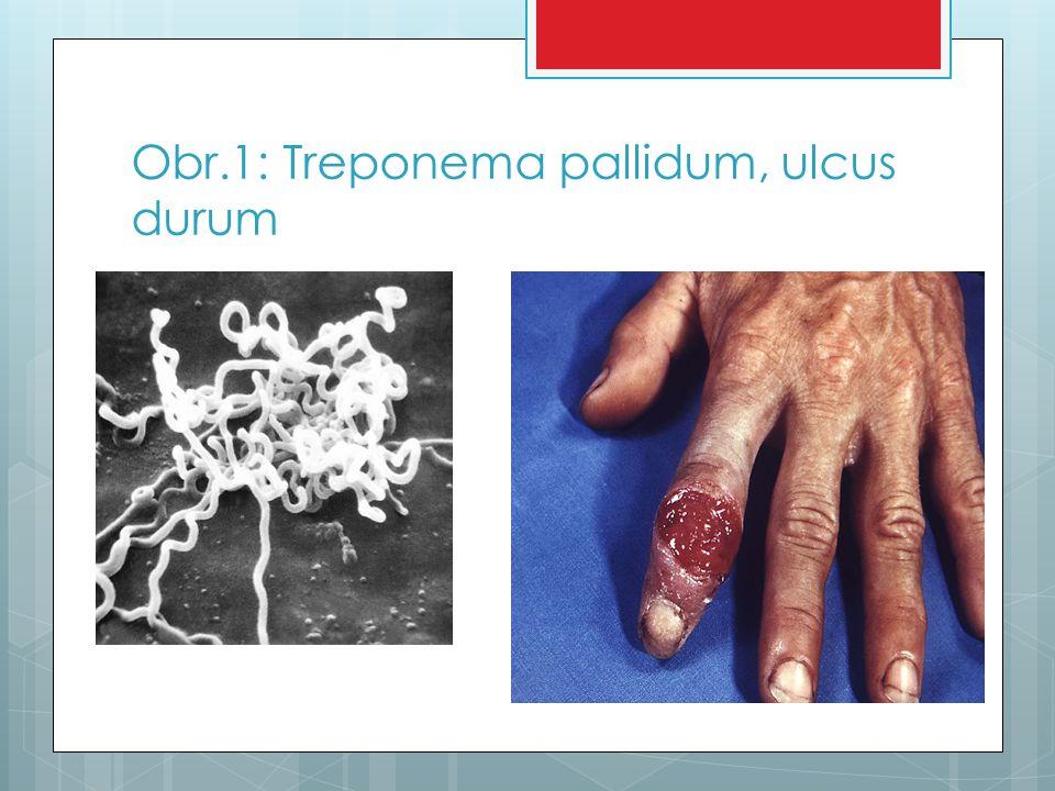 1.stádium nemoci  V místě, kde mikrob vnikne do těla se vytvoří za 3 týdny tzv.