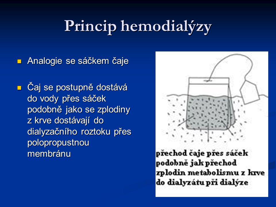 Princip hemodialýzy Analogie se sáčkem čaje Analogie se sáčkem čaje Čaj se postupně dostává do vody přes sáček podobně jako se zplodiny z krve dostáva