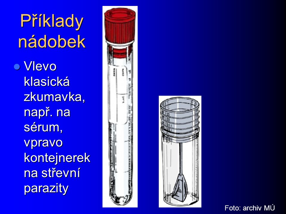 Příklady nádobek Vlevo klasická zkumavka, např. na sérum, vpravo kontejnerek na střevní parazity Vlevo klasická zkumavka, např. na sérum, vpravo konte