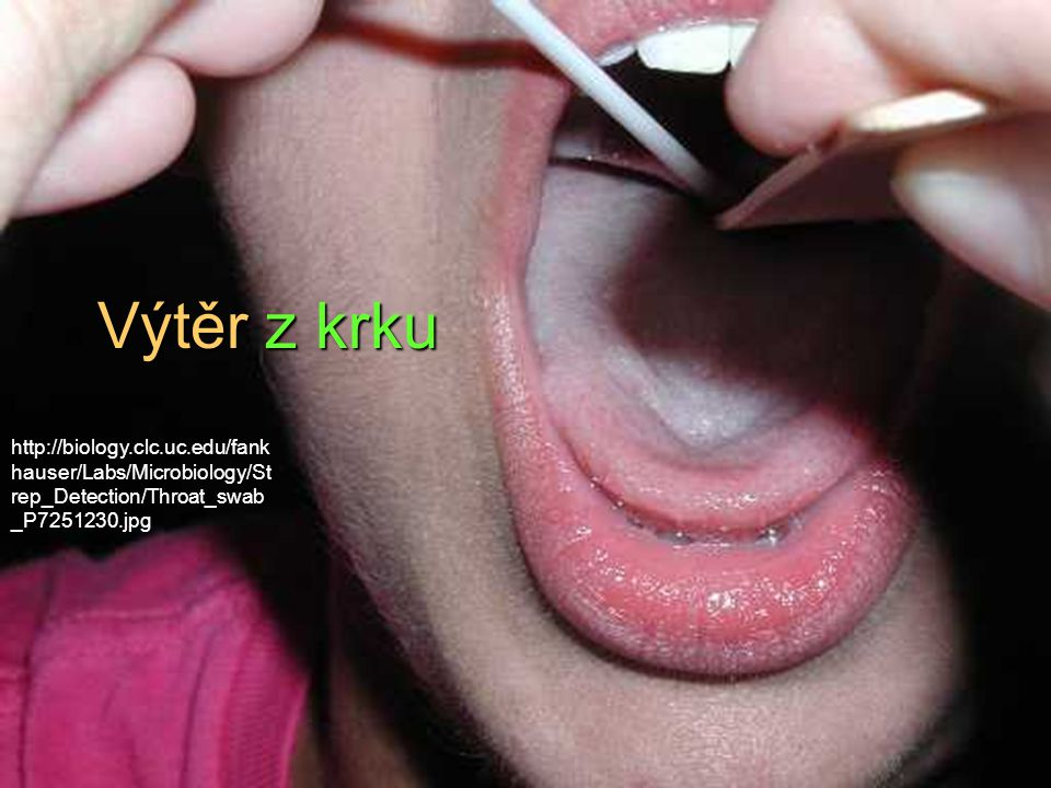 Výtěr z krku http://biology.clc.uc.edu/fank hauser/Labs/Microbiology/St rep_Detection/Throat_swab _P7251230.jpg