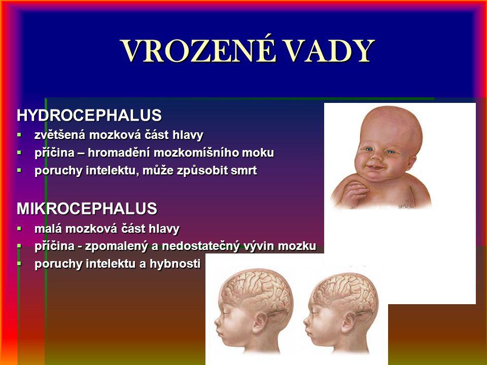 VROZENÉ VADY HYDROCEPHALUS  zvětšená mozková část hlavy  příčina – hromadění mozkomíšního moku  poruchy intelektu, může způsobit smrt MIKROCEPHALUS