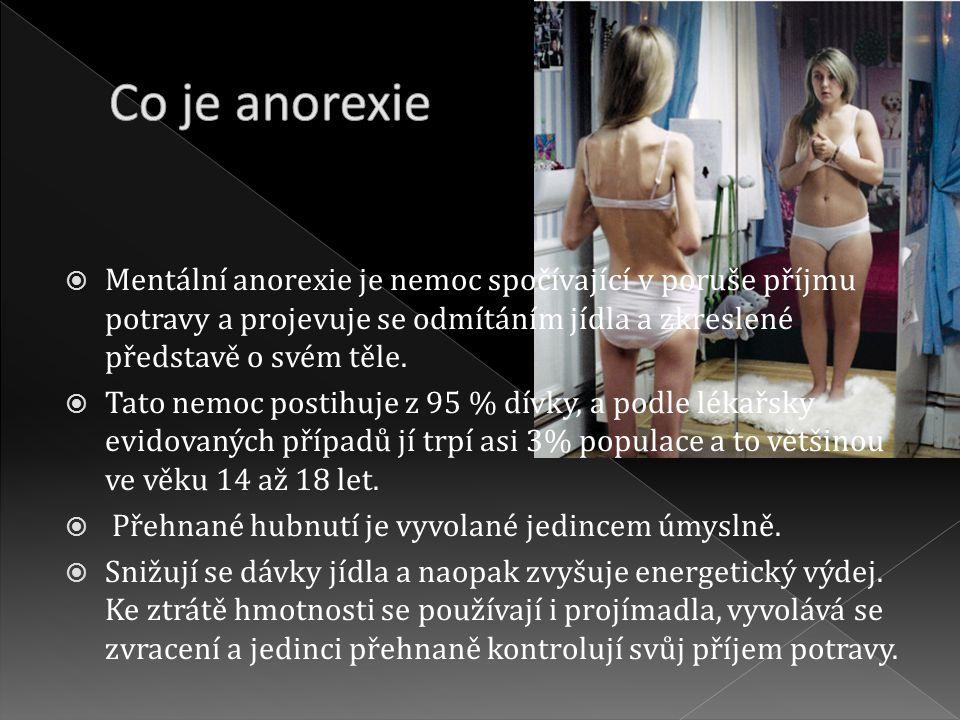 Mentální anorexie je nemoc spočívající v poruše příjmu potravy a projevuje se odmítáním jídla a zkreslené představě o svém těle.  Tato nemoc postih